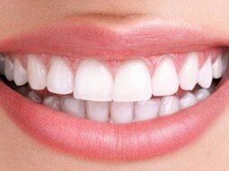 Invisalign perfect teeth